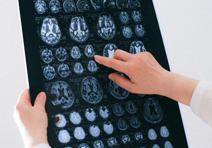 Person showing a brain scan to determine brain health.